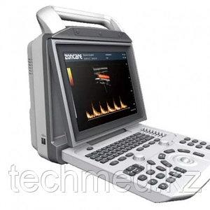 Цифровой портативный УЗИ-сканер с цветным, энергет-м, импульсным и постоянным допплером ZONCARE Q3 portable