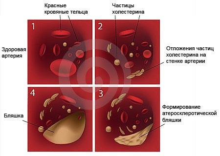 Атеросклероз. Комплекс №1,  3-х месячный курс.