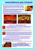 Плакаты МОКУЛЯРНАЯ ДИСТРОФИЯ, фото 1