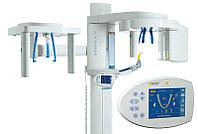 3D рентгеновский аппарат Sirona: ORTHOPHOS XG 3D