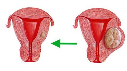 Кистоз матки. Комплекс 1
