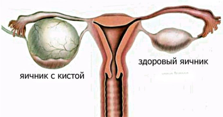 Кистоз яичников. Комплекс 2