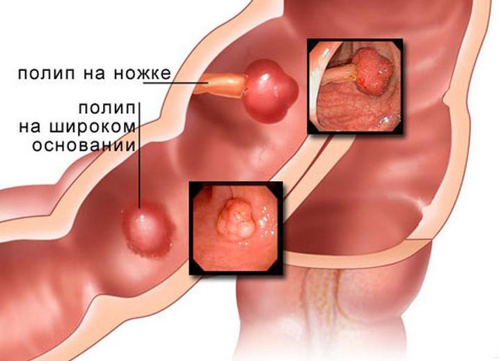 Полипы в желудке, кишечнике. Комплекс 2