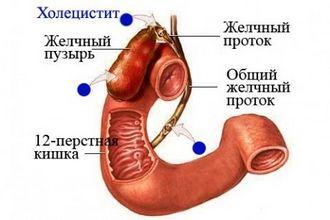 Холецистит. Комплекс