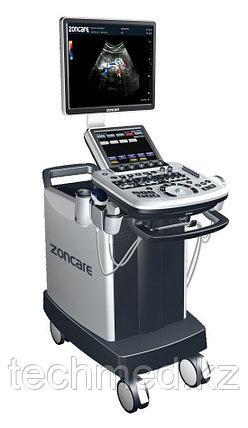 УЗИ Сканер  Zoncare Q9, фото 2